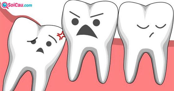 Giải mã giấc mơ thấy răng bị mẻ