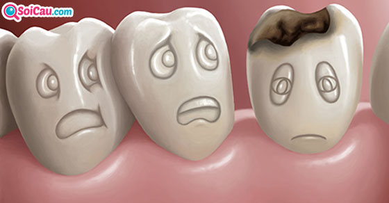 Ngủ mơ thấy răng là điềm gì?