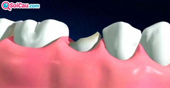 Giải mã giấc mơ gãy răng có điềm báo gì?