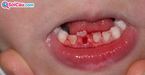 Mơ thấy gãy răng là điềm gì?